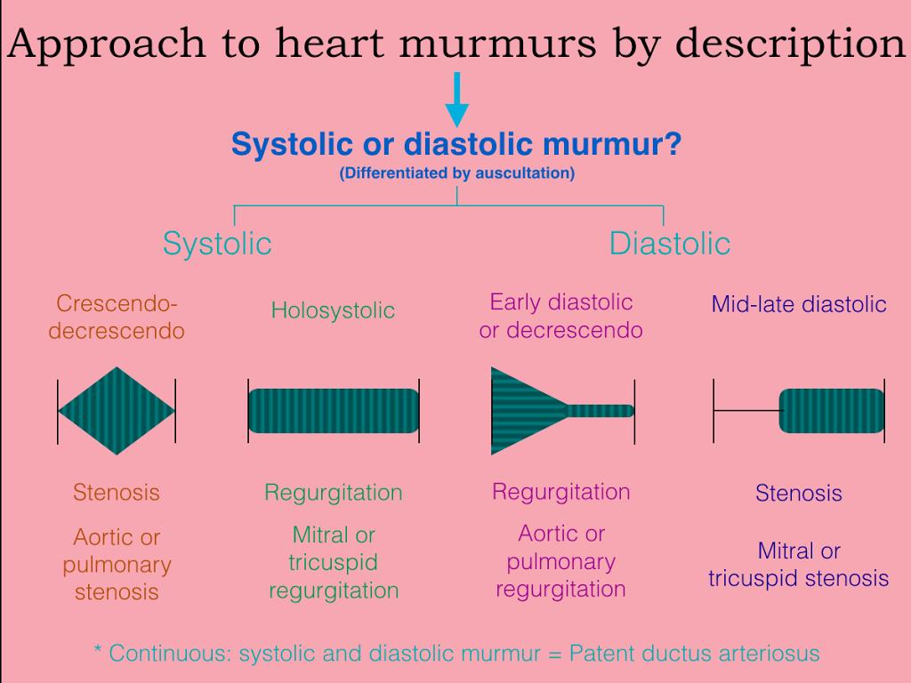 usmle approach to heart murmur questions